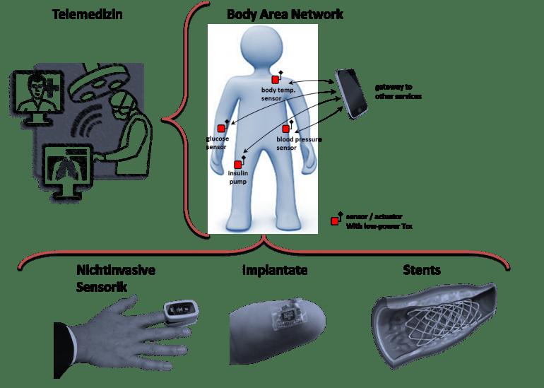 Beispiele der Medizintechnik: Telemedizin und tragbare Sensorik (Wearables)