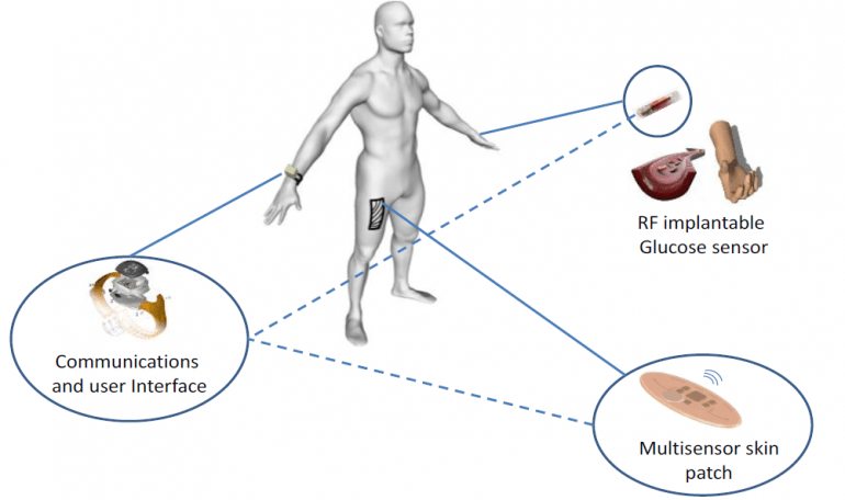 Systemübersicht mit Nutzer, Implantat, Sensorpflaster und Datenübertragung