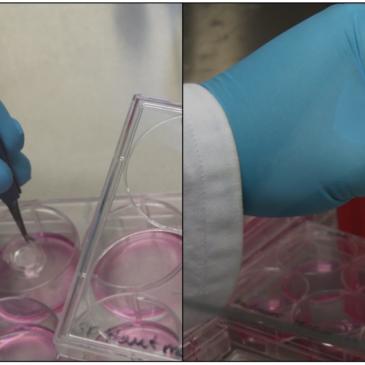Innovative Sensorevaluierung mittels Hautmodellen für die Hydratations- und Glukosemessung
